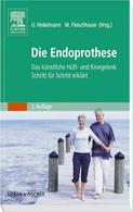 die_endoprothese